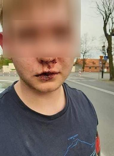 16-latek pobity przez grupę mężczyzn! Sportowiec musiał przerwać treningi